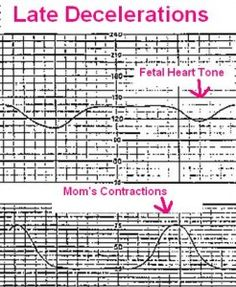 This article is about how to monitor fetal heart tone of early, late, and variable decelerations during labor. I have been studying this in nursing school and at first I thought this was very hard … Newborn Nursing, Ob Nursing, Nursing Tips, Nursing Notes, Maternity Nursing, Nursing Schools Near Me, Nursing Students, Medical Students, Rn School