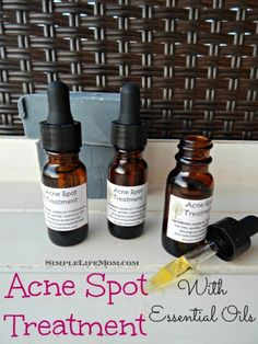 Spot Treatment Using Essential Oils Acne Spot Treatment Using Essential Oils - essential oils chosen to reduce inflammation, balance your skin's oils, reduce scarring, kill bacteria, and heal quickly. From Simple Life Mom Cystic Acne Treatment, Acne Spot Treatment, Acne Treatments, Facial Treatment, Natural Oils For Skin, Natural Facial, Natural Beauty, Skin Care Remedies, Acne Remedies