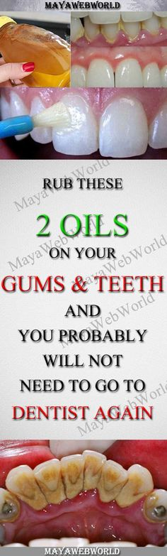Rub These Two Oils On Your Gums And Teeth And You Probably Will Not Need To Go To Dentist Again – MayaWebWorld Gum Health, Teeth Health, Healthy Teeth, Dental Health, Healthy Tips, Oral Health, Dental Care, Healthy Drinks, Healthy Recipes