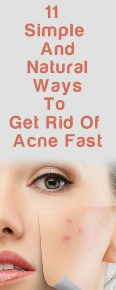 How to Get Rid of Acne http://testedhomeremedies.net/how-to-get-rid-of-acne.html