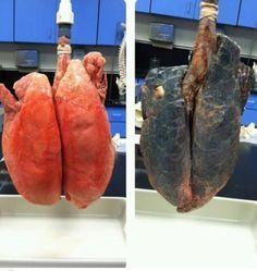 Tupakoimattoman ja tupakoivan ihmisen keuhkot