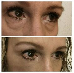 Instantly Ageless is an all natural anti-aging cream that works in minutes! It works like a neurotoxin treatment but without the needles. Ageless beauty begins now. http://www.instantrejuvenation.com/product/instantly-ageless/