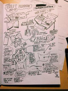 @smizz 4/4 Chest planning set up #radiotherapy