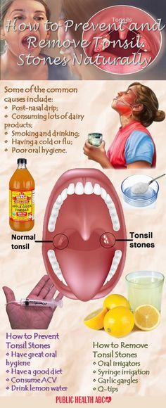 Although quite common, tonsil stones are rarely talked about, which is a shame, considering how uncomfortable and stubborn they can be. The Cause Tonsil stones are hardened and calcified debris, usual Natural Home Remedies, Natural Healing, Oral Health, Health Tips, Public Health, Health Benefits, Health Care, Tonsilitis Remedy, Chronic Sore Throat