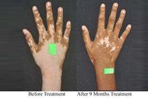 Results of #IntegrativeMedicine Treatment of #Vitiligo  #ayurveda #CAMtreatment