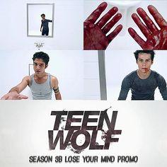 Teen Wolf Season 3B