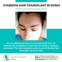 Are you seeking services of some renowned clinic for eyebrow hair transplant in Dubai and Abu Dhabi or eyebrow restoration? The hair transplant center is one of the best hair restoration clinics in UAE. Eyebrow Hair Transplant, Fue Hair Transplant, Tumeric Hair, Hair Loss Clinic, Thicken Hair Naturally, Aesthetic Dermatology, Dramatic Hair, Hair Falling Out, Hair Breakage