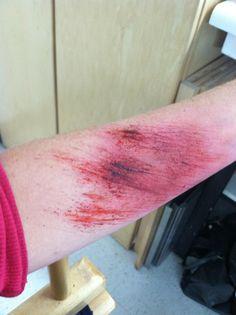 H's road rash