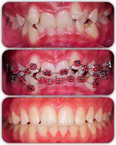 #braces #braces #transformation