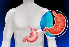 Es posible matar la bacteria Helicobacter pylori con el empleo de estos ingredientes expuestos por recientes investigaciones médicas que han encontrado una