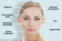 Skin colour changes can occur because of a number of reasons - including alcohol…