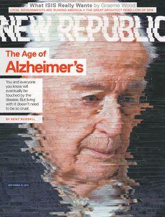 Age of Alzheimer's