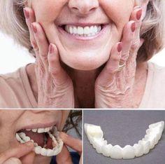 MAGIC Teeth Brace - Bigsuprise Perfect Smile Teeth, Hair Tinsel, Veneers Teeth, Teeth Braces, Braces Smile, Stained Teeth, Peel Off Mask, Healthy Beauty, White Teeth