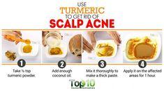 turmeric remedy for scalp acne naturally beauty Home Remedies For Hair, Home Remedies For Acne, Natural Remedies, Cystic Acne Remedies, Oily Skin Treatment, Oil For Hair Loss, Hair Remedies For Growth, Hair Growth