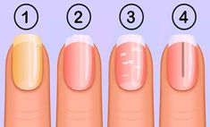 The fingernails can be the window to the overall health and it turned out, that having strong fingernails is not only beneficial to your manicure. Pale Nails, Yellow Nails, My Nails, Cracked Nails, Manicure, Brittle Nails, Nail Plate, Healthy Nails, Acrylic Nail Art
