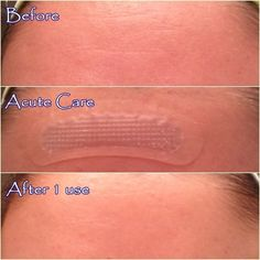 Rodan and Fields Acute Care - my own results using this wrinkle filler! This is just after one use! Coming in January 2015! https://kcroker.myrandf.com