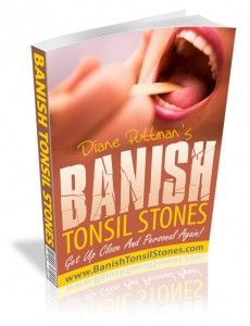 How To Get Rid Of Tonsil Stones – 4 Great Home Remedies