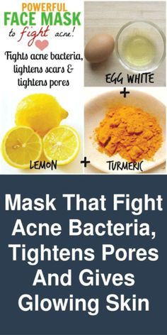 Mask that fight acne bacteria, tightens pores and Gives glowing skin This is a very powerful face mask that fights acne. It removes the bacteria, cleanse the pores. It will give you a glowing smooth skin. Here are the ingredients you will need to make thi Lemon Face Mask, Lemon On Face, Acne Face Mask, Skin Mask, Egg Mask Face, Lemon Juice Face, Homemade Face Masks, Homemade Skin Care, Skin Tips