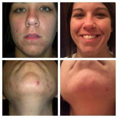 Acne/blemishes marring and scarring your complexion? New Rodan + Fields consultant Danielle Reinelt said she always battled cystic acne and when she started she had about 11 cystic acne on her face and today she has 0. This is her face after using the UNBLEMISH Regimen for 3 weeks!!! Go here to ensure your skin will be glowing (and acne-free!) by summer! --->https://noellebuffer.myrandf.com/Shop/Unblemish