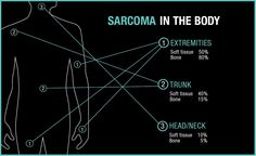 Sarcoma 101: Don't Ignore Your Lumps and Bumps - Future of Cancer Care