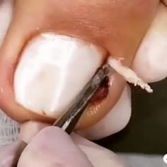 Ingrown toenails treatment. What has been your experience with ingrown nails, comment below . . .
