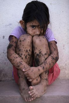 "Camila Veron, 2, born with multiple organ problems and severely disabled, stands outside her home in Avia Terai, in Chaco province, Argentina, March 31, 2013. Her mother was told, ""the water made this happen because they spray a lot of poison here."" CREDIT: Natacha Pisarenko/AP... #argentina #gmo"