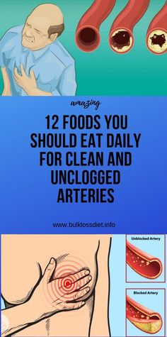12 foods you should eat daily for clean and unclogged arteries Herbal Remedies, Health Remedies, Natural Remedies, Natural Treatments, Diarrhea Remedies, Wellness Fitness, Health And Wellness, Health Fitness, Fitness Diet