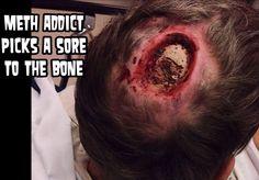 METH NO BUENO This dude picked a sore down to the bone meth causes this bahavior. #meth #picker #bone #head #medical #gross