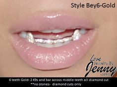 Real Gold Teeth Grills Custom fit 6pc.FREE by NameJewelrybyJenny