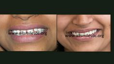 """Smile Makeovers in Bangalore. If you are embarrassed by your smile and wish to get a designer smile, Dr. Trivikram, cosmetic dentist in Bangalore has the solution for you. He offers smile makeovers by modifying the existing teeth with ceramic crowns/veneers. """"App +91-0-98450 85230. More at https://www.facebook.com/Allsmilescosmeticdentistry/photos_albums"""