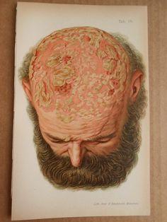 Rare 1899 Antique Human Anatomy Lithograph Book Print Skin Disease psoriasis vulgaris nummularis.
