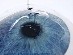 Dribbble - Cornea transplant 01 by Studio Analoog