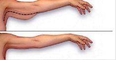 Ter excesso de gordura nos braços é um problema desagradável, especialmente para as mulheres. Ele vem acompanhado de outro problema: a flacidez nos braços. Braços