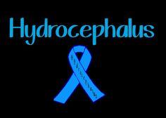 Hydrocephalus