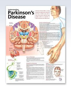 Understanding Parkinson's Disease anatomy poster lists symptoms such as decreased/loss of sense of smell, depression, sleep problems, etc. Neurology for doctors and nurses. by latonya Occupational Therapy, Physical Therapy, Speech Therapy, Speech Language Pathology, Speech And Language, Degenerative Disease, Nursing Notes, Medical Information, Alzheimers