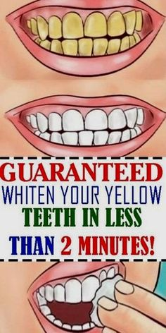 Why splurging money for teeth whitening treatments? when there are natural teeth whitening solutions you can do at home. There might be lots of other options also out there to whiten teeth which are expensive but may not give promising results. Natural Teeth Whitening, Whitening Kit, Fitness Workouts, Low Carb Fast Food, Beauty Tips And Secrets, Beauty Hacks, Healthy Teeth, Healthy Tips, Home
