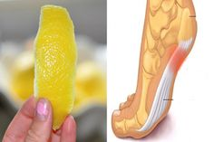 Lemon Peel - How To Minimize Chronic Pain And Inflammations With It? Find 2 Natural Lemon Peel Treatments to Minimize Chronic Pain