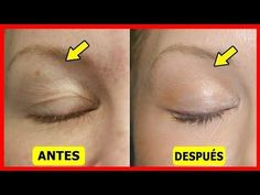 Saggy and droopy eyelids can be really annoying and makeup often looks unattractive on loose skin. Droopy eyelids may even make a person look much older. Facial Skin Care, Natural Skin Care, Face Care, Body Care, Face And Body, Face Skin, Beauty Secrets, Beauty Hacks, Droopy Eyelids