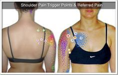 Trigger Point Therapy for Shoulder Pain (guide to interpreting symptoms, locating trigger points, and administering treatment)