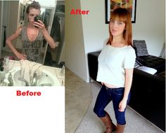 Anorexia before & Primal diet after < I love this <3