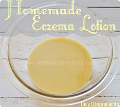 Homemade Eczema Lotion Recipe   Only 3 Ingredients! - We Have It All