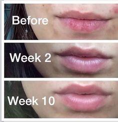 Rodan + Fields Lip Renewing Serum will make your lips look young again.