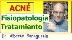 ACNÉ: Fisiopatología, causas y tratamiento