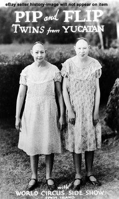 Pip and Flip, twins from Yucatan, with the World Circus sideshow, Coney Island, 1925-1935.