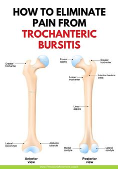Sometimes our bodies own defense mechanisms can come back to hurt us. Thats the case in trochanteric bursitis a common cause of lateral hip pain that can really slow you down. Instead of giving into the pain heres how to eliminate pain from trochante Hip Bursitis Exercises, Bursitis Hip, Scoliosis Exercises, Back Pain Exercises, Stretches, Osteoarthritis Hip, Fitness Workouts, Hip Workout, Human Body