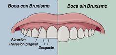 El bruxismo es una condición médica que hace referencia a la molienda y apretar excesivo de los dientes sin un propósito funcional