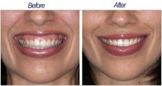 """An elevation of the upper lip far above the upper teeth, exposing gums and producing an unattractive """"Gummy Smile."""" The main cause of this is an over-active muscle which pulls the lip too far up when smiling. Sometimes the gummy smile is elevated by a thin upper lip that contributes even more to the problem by further exposing the upper gum. People, whose gums stand out more than their smile does, often try to control their smiles, However, this can result in them looking depressed and…"""