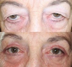 Dr. John Burroughs, Colorado Eyelid Plastic Surgeon, Shares Upper & Lower Eyelid Surgery Result.  John R. Burroughs, MD PC www.drjohnburroughs.com 719-473-8801 Surgery of the Eyelids, Face, and Orbits Colorado Springs, Pueblo, Canon City