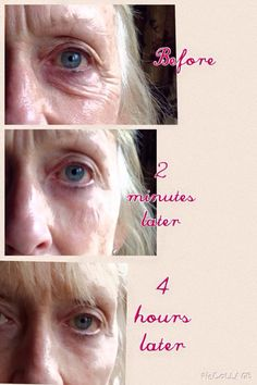 INSTANTLY AGELESS - Instant Botox in a bottle! Changing lives, physically and financially 2 minutes at a time. Best Anti Aging, Anti Aging Skin Care, Love Your Skin, Under Eye Bags, Pure Beauty, Ageless Beauty, Face Care, Paraben Free, Body Hacks