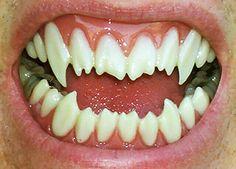 Razor Sharp (Dental Distortions)